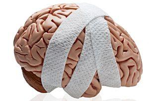 Kalıcı Beyin Hasarı
