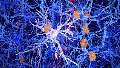 Photo of Beyin Düşmanı Yiyecekler – Hafızaya Zarar Veren Besinlerden kaçının!