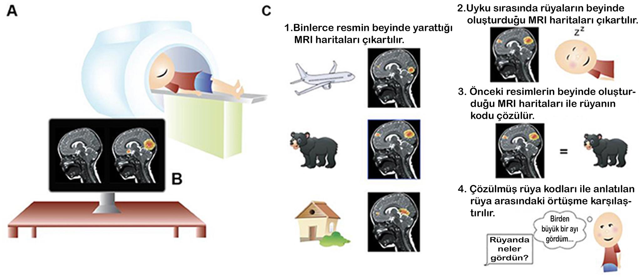 Rüyalar / MRI Görüntüleri / Rüyaların Kodları ve Çözümleri