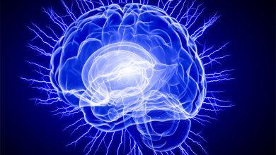 Beyin Fırtınası Tekniği