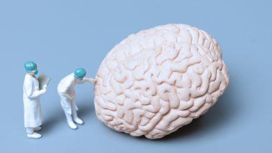 Beynin Bölümleri - telensefalon nedir - telencephalon nedir