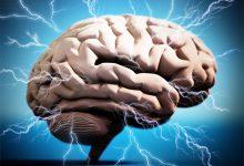 Nöroplastisite hakkında sözler